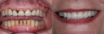 Dental Crowns Before And After Judy