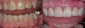 Dental Crowns Before And After Robin